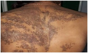 Spectrum of dermatological manifestation in all female attending tertiary health care in a developing country