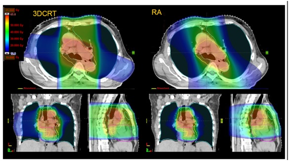 Volumetric modulated arc therapy and concurrent chemotherapy for esophageal cancers: Dosimetric comparison with 3D conformal radiotherapy and early clinical results