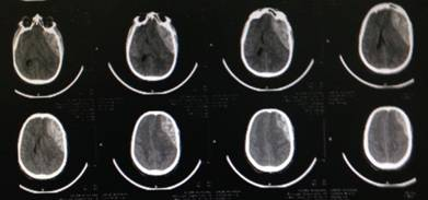 Urgency for surgical evacuation of post traumatic Intracranial acute epidural hematoma