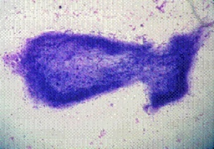 Role of FNAC in the diagnosis of cysticercosis