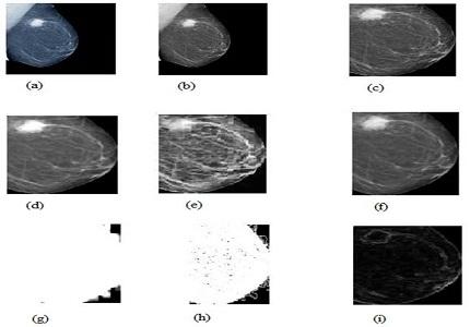Detection of malignant tissue in mammography image using morphology based segmentation technique