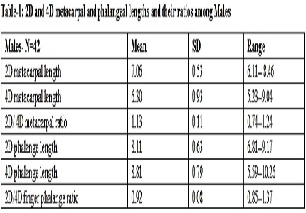 Sexual dimorphism in ratio of second and fourth phalanges and metacarpals: A retrospective study