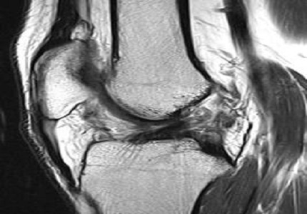 High field 3T magnetic resonance imaging:  MR-anatomy evaluation of traumatic knee injuries