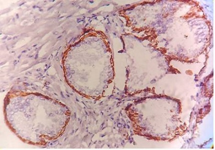 Diagnostic and prognostic role of Ki-67 and cytokeratin-5 expression in BPH and carcinoma prostate