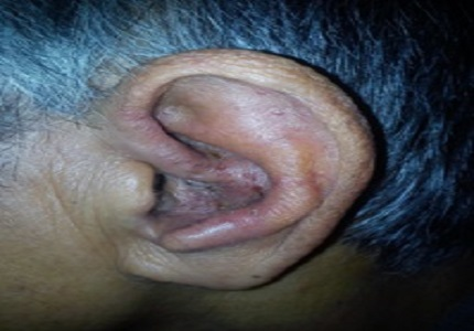 Herpes zoster oticus with multiple cranial nerve involvement: a rare presentation