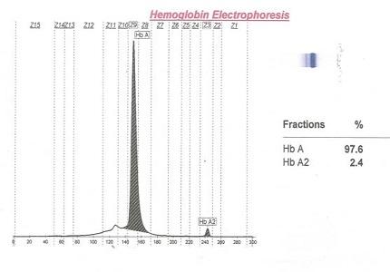 A Clinico-Haematological study of hemoglobin E disease and trait