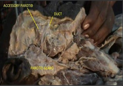 Accessory parotid gland: its surgical importance