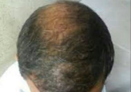 Acneform eruptions with use of minoxidil-a case report