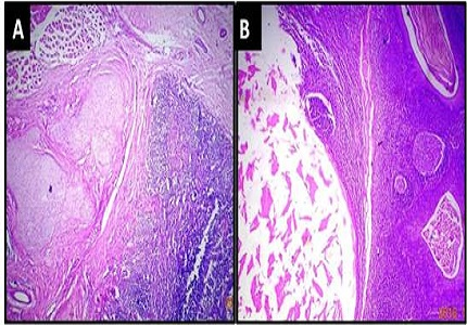 Histopathological spectrum of lesions of tonsil- A 2 year experience from tertiary care hospital of Maharashtra, India
