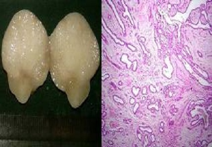 Histopathological study of breast lesions
