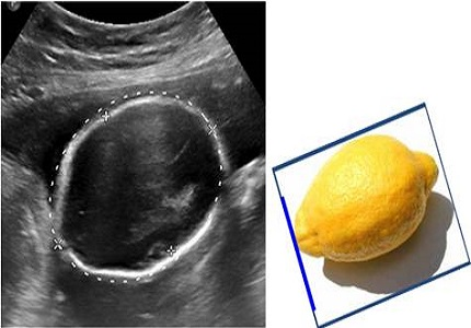 Prenatal sonographic evaluation of Arnold Chiari II Malformation