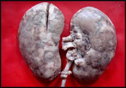 Renal cortical necrosis at autopsy: a 12 year experience at a tertiary care centre in Mumbai
