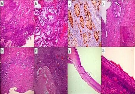 46, XXovotesticular disorder of sex development with serous cystadenomas of the ovary